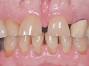 Esthetic Rehabilitation for Severe Worn Dentition - Part 2 of 2