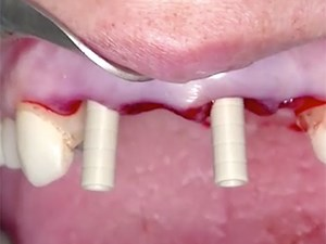 Immediacy in Implant Dentistry