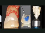 Simultaneous and Integrated Surgical and Restorative Protocols in Immediate Anterior Implant Therapy