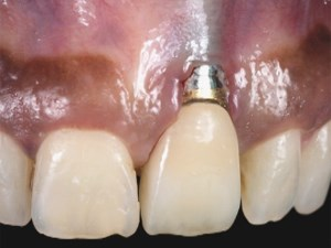 What Tissue Changes Can We Expect with Anterior Implant Therapy?