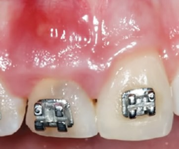 Post-Traumatic Treatment of Maxillary Incisors by Immediate Dentoalveolar Restoration with Long-Term Follow-Up
