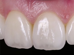 Minimally Invasive Approaches in Tooth Preparation and Prosthetics: The Role of Magnification