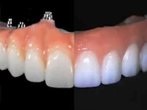 The Proof is in the Laboratory;  A Maxillary Full Arch Implant Supported Zirconia Prettau Comparison