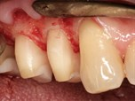 Can We Still SAVE Teeth? Modern Periodontal Surgical Concepts for the Natural Dentition