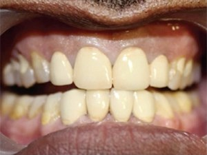 Timing of Occlusal Contacts - Get the Timing Right Everytime!