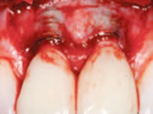 The Management of Recession Midfacial to Immediately Placed Implants in the Aesthetic Zone