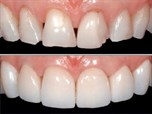 Consecutive Case Series of Monolithic and Minimally Veneered Zirconia Restorations on Teeth and Implants: Up to 68 Months
