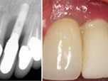 Peri-Implantitis: Diagnosis, Etiology and Treatment