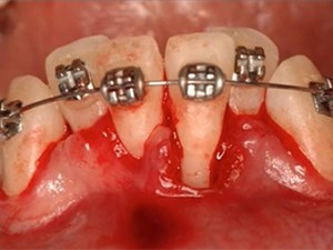 The Role of Orthodontics in the Multidisciplinary Treatment of Complex Cases - Part 2 of 2