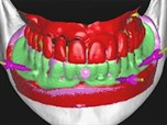 The 3D CBCT Dual Scan Protocols: Surgical Restorative Management in Modern Dentistry