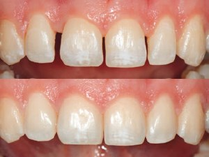 Contemporary Options for Restoration of Anterior Teeth with Composite