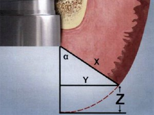 Finding Z: A Mathematical Method For Predicting Tissue Position After Implant Abutment-Restoration Placement
