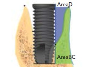A Cone Beam Tomographic Evaluation of Hard Tissue Alterations at Immediate Implants: A Clinical Prospective Study