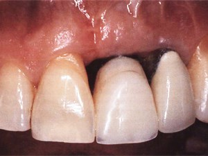 Developing Optimal Peri-Implant Papillae within the Esthetic Zone: Guided Soft Tissue Augmentation
