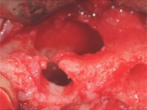 Diagnosis and Management of a Maxillary Periapical Cyst