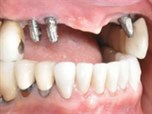 Bone Graft Solutions in the Treatment of a Defective & Deficient Ridges; Advantages of Combined Therapy