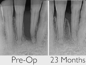 The Potential of Lasers in Advanced Periodontal and Implant Therapy