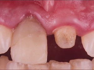 Soft Tissue Handling and Correcting Defects Around Implants in the Esthetic Zone