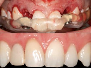 The ABC Protocol in the Esthetic Zone: A Comprehensive Surgical & Prosthetic Approach