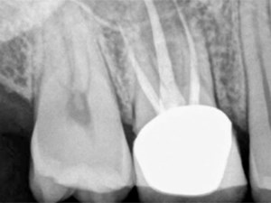 CBCT in Endodontics: Changing the Landscape of Diagnosis and Clinical Treatment