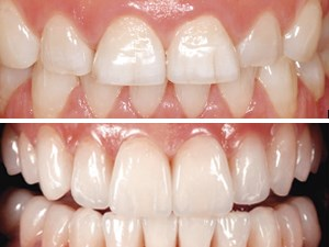 Esthetic Rehabilitation of a Worn Dentition with a Minimally Invasive Prosthetic Procedure