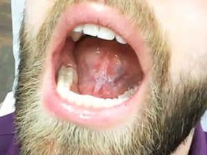 Lingual Frenectomy with Solea Laser