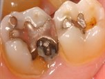 Preventing Subgingival Margins by Implementing Supra-gingival Dentistry Protocol