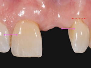 Demystify The Gingival Restorative Interface in Oral Rehabilitation