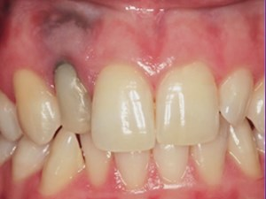 Bio-Surgery; Tips for More Biological and Prosthodontic Approach