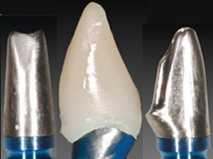 "The ""Hybrid Abutment"": A New Design for Implant Cemented Restorations in the Esthetic Zones"