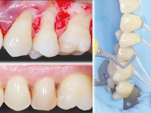 The Biomimetic Approach to Saving Teeth: Minimally Invasive Restorations and Periodontal Surgery