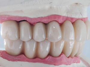 Retrospective Analysis of 26 Complete-Arch Implant-Supported Monolithic Zirconia Prostheses with Feldspathic Porcelain Veneering Limited to the Facial Surface