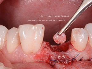 Tipping the Needle in Implant Dentistry