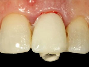Immediate Implant Provisionalization: A Critical Aspect in Tissue Care and Esthetics-Part 2