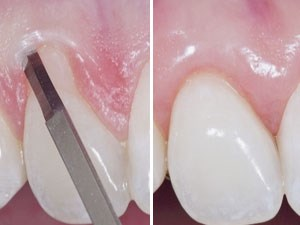 Plastic-Esthetic Periodontal and Implant Surgery: A Microsurgical Approach - Part 1