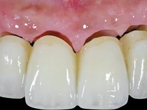 A Complete 3D Strategy to Esthetic Cross Arch Restorations: Guide Surgery & Soft Tissue Interface Management with CAD-CAM Restorations