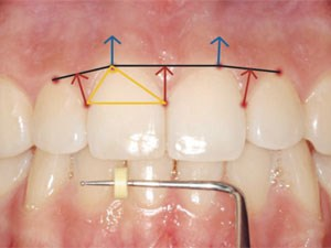Gingival Biotype Characterization - A Study in a Portuguese Sample