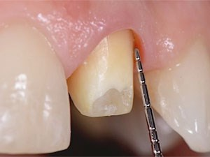 "Simplifying Complexity with ""Shoulderless"" Preparations: Are More Aggressive Tooth Preparation Techniques Needed?"