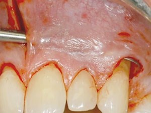 Prevention and Management of Peri-implant Soft Tissue Complications