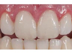 Updating Classifications of Ceramic Dental Materials
