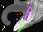 Computer-Guided Applications Beyond Implants: Bone Grafting and Reconstructive Surgery
