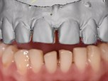 Smile Design 3D vs. 2D: The Evolution of Precision in Esthetic Digital Dentistry