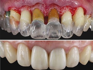 Periodontal-Prosthesis in Modern Dentistry – Part 1 of 2