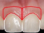 Achieving Stable Esthetic Results with Implant Supported Restorations