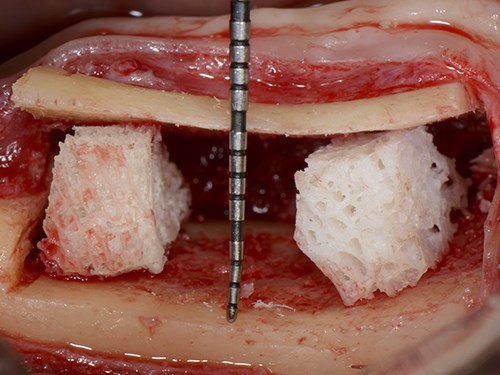 Interpositional Bone Grafts to Treat the Posterior Atrophic Mandible