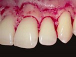 Modern Crown Lengthening: Classification and Clinical Application