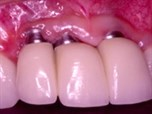 Managing Esthetic Implant Complications