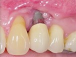 Surgical Concepts to Treat Esthetic Implant Disaster Cases - Part 1 of 2