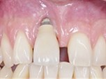 Surgical Concepts to Treat Esthetic Implant Disaster Cases - Part 2 of 2