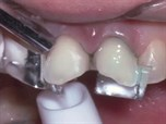 The Role of Veneer Seating in Esthetic Dentistry